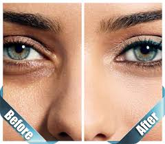 Juvenas treatment for Under Eye Dark Circles:-