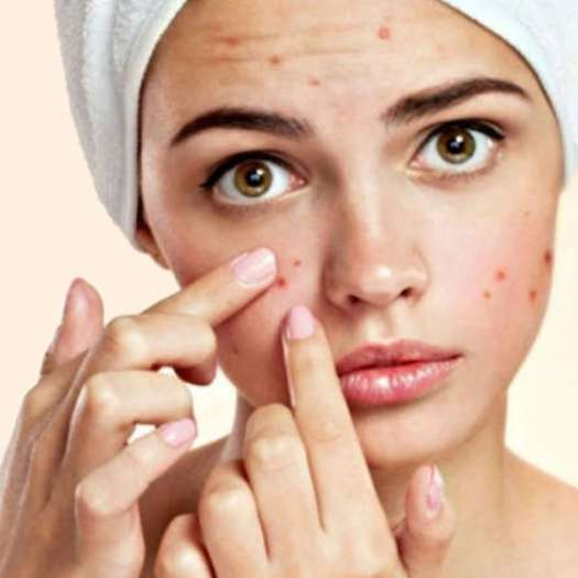 SAY GOODBYE TO ACNE EFFECTIVELY